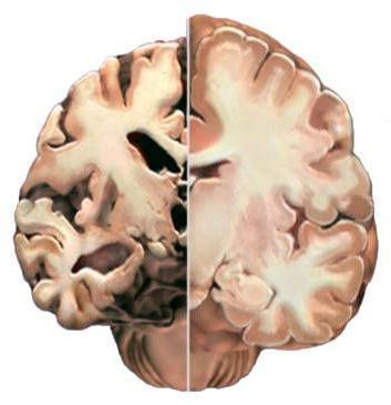 Глиоз головного мозга: что это такое, прогноз жизни и выбор лечения