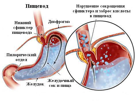 Воспаление слизистой пищевода симптомы