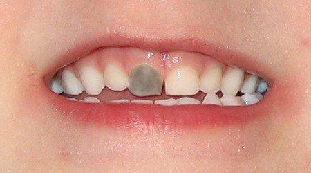 Черные зубы у ребенка 2 года. Налет на зубах черные зубы у ребенка