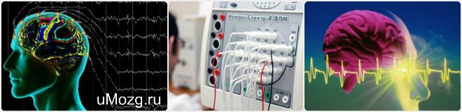 ЭЭГ ГОЛОВНОГО МОЗГА: что это такое, что показывает обследование электроэнцефалографии, как подготовиться к процедуре и как ее делают взрослым