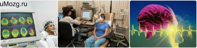 ЭЭГ (Электроэнцефалограмма) - расшифровка